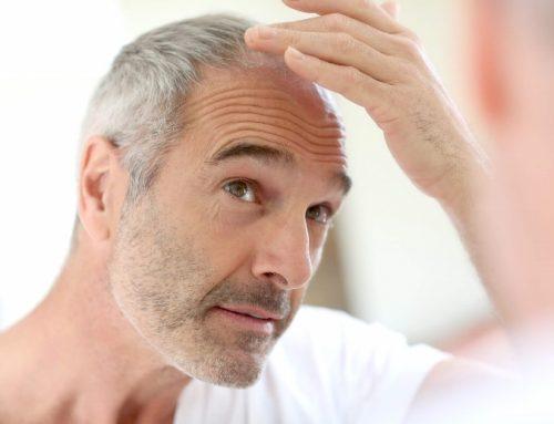 ¿Qué debo saber si pienso realizarme un trasplante de cabello?